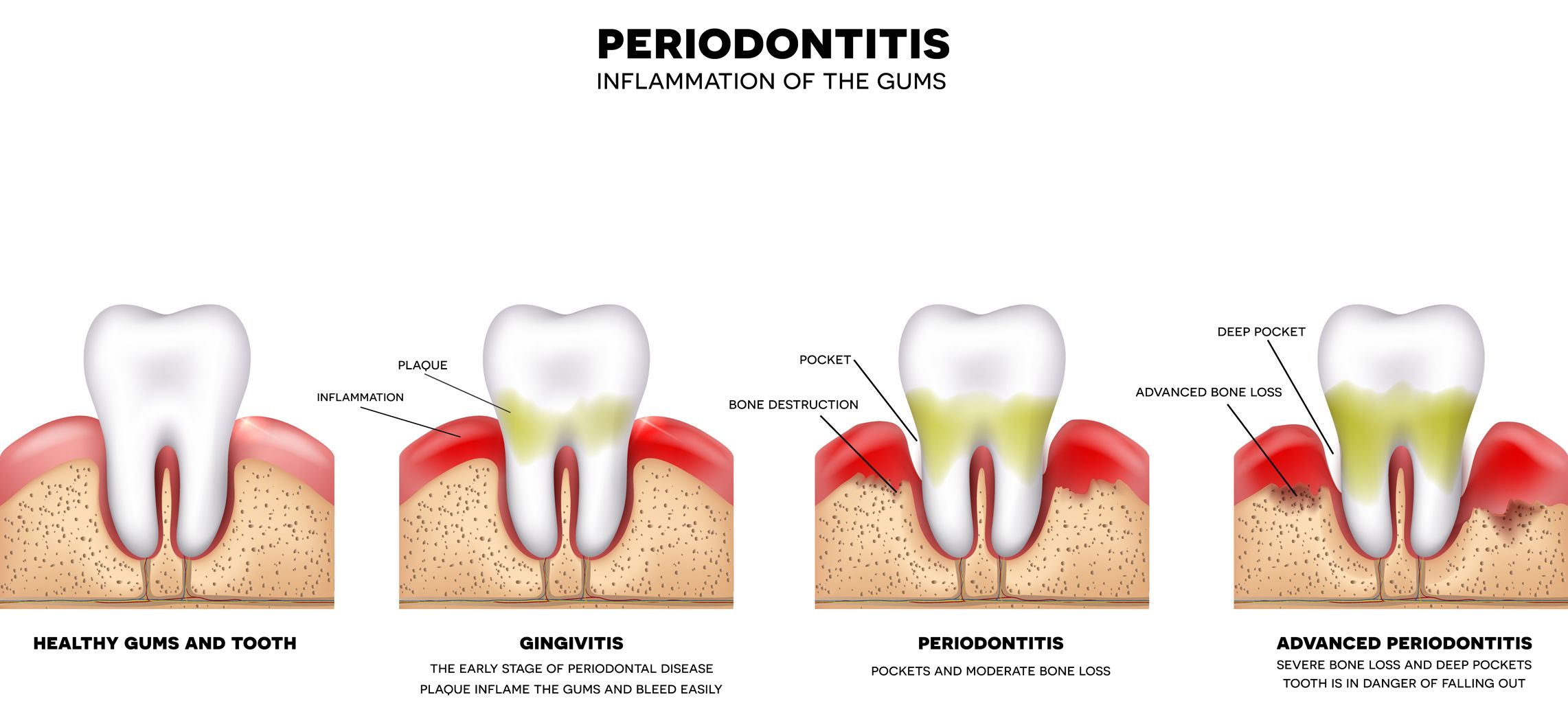 Gum Disease Therapy - diagrams of various tooth decay