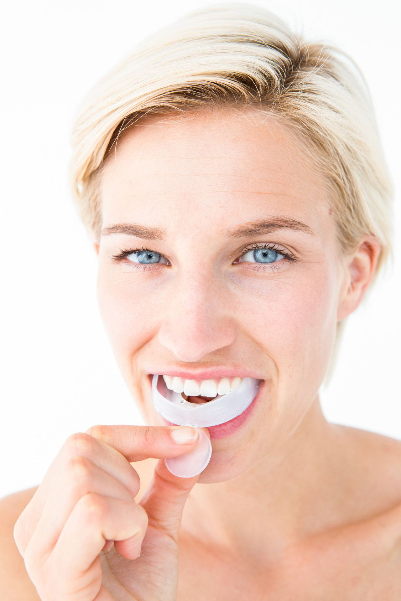 Mouth Guards - woman with night mouth guard