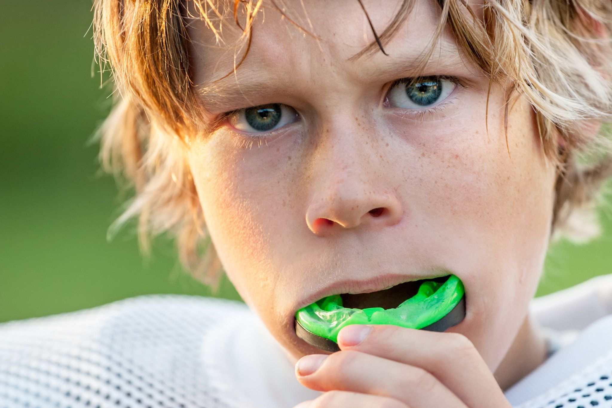 Mouth Guards - Boy with mouth guard