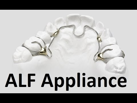 orthodontics - ALF appliance