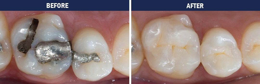 white fillings - before and after photos