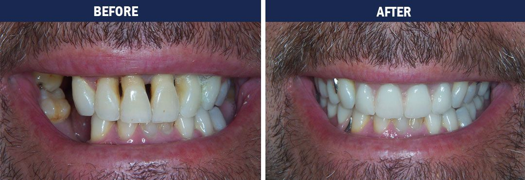 Full Mouth Rehabilitation - before and after photo