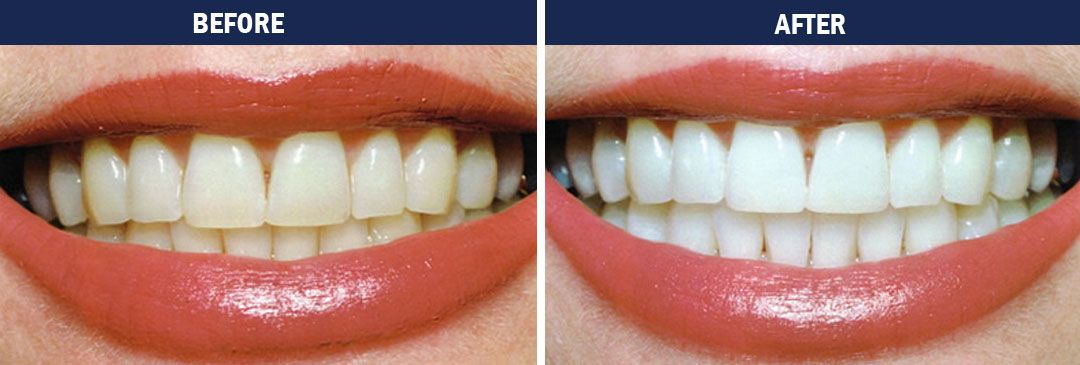 Teeth Whitening - before and after pics