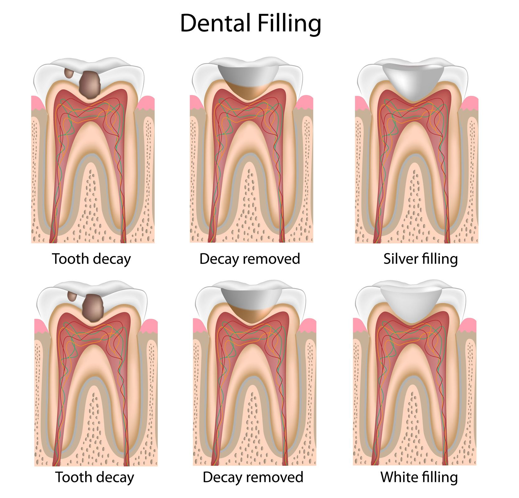 white fillings - dental procedure