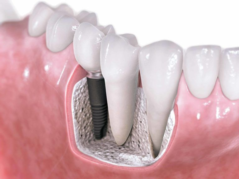 Dental Implants - Ilustration