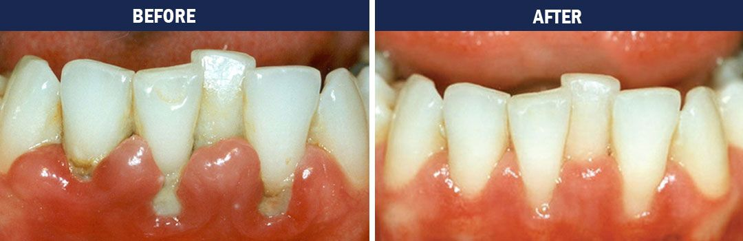 Gum Disease Therapy - before and after pics