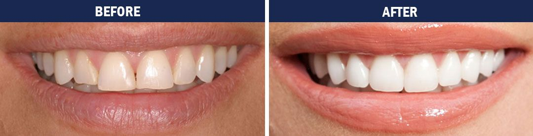 Porcelain Veneers - before and after photos